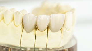 The Colony Dental Crowns and bridges model