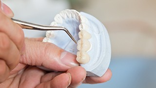 The Colony Dental Implants model held by person