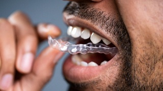 A man requiring adult orthodontics in The Colony and using MTM clear aligners to achieve a healthier, more aesthetically pleasing smile