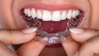 A person inserting a clear aligner into the top arch of their teeth