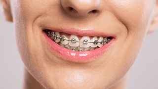 Person smile adorned with braces