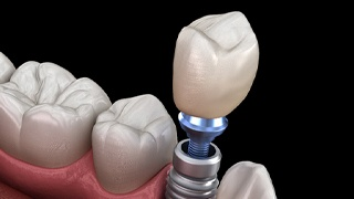 Illustration of single dental implant, abutment, and porcelain crown