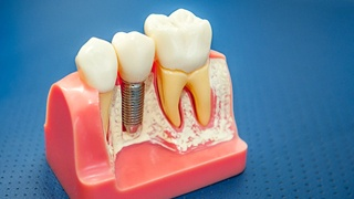 Model of dental implant and teeth with crowns