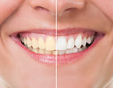 Person's teeth before and after whitening