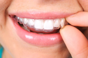 woman smiling Invisalign aligners