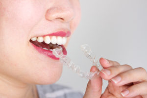 woman inserting Invisalign in The Colony