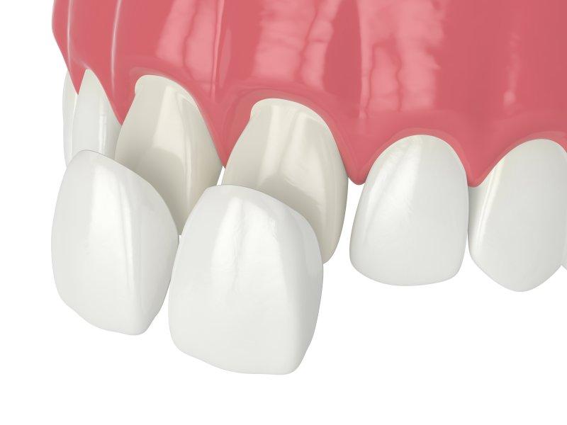 Pair of veneers being placed on front teeth